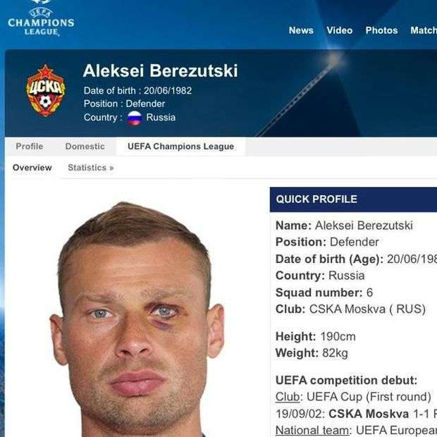 Кумедне фото в профілі футболіста Олексія Березуцького на сайті УЄФА (2 фото)