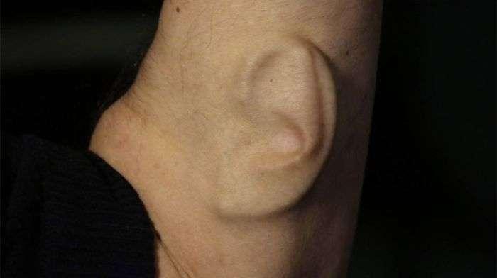 Професор з Австралії виростив на руці вухо з Wi-Fi і GPS (3 фото)