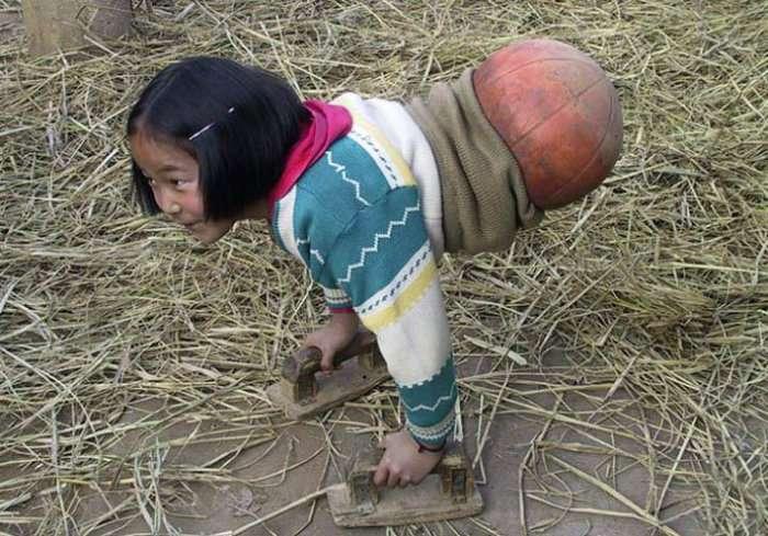 Сильна духом дівчинка (4 фото)